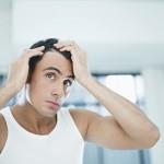 Męski problem – wypadanie włosów: prawdy i mity