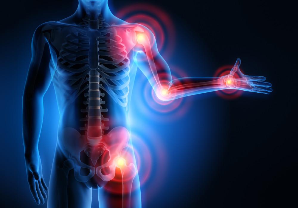 Choroby reumatyczne – jak zapobiegać bólowi ? – część pierwsza