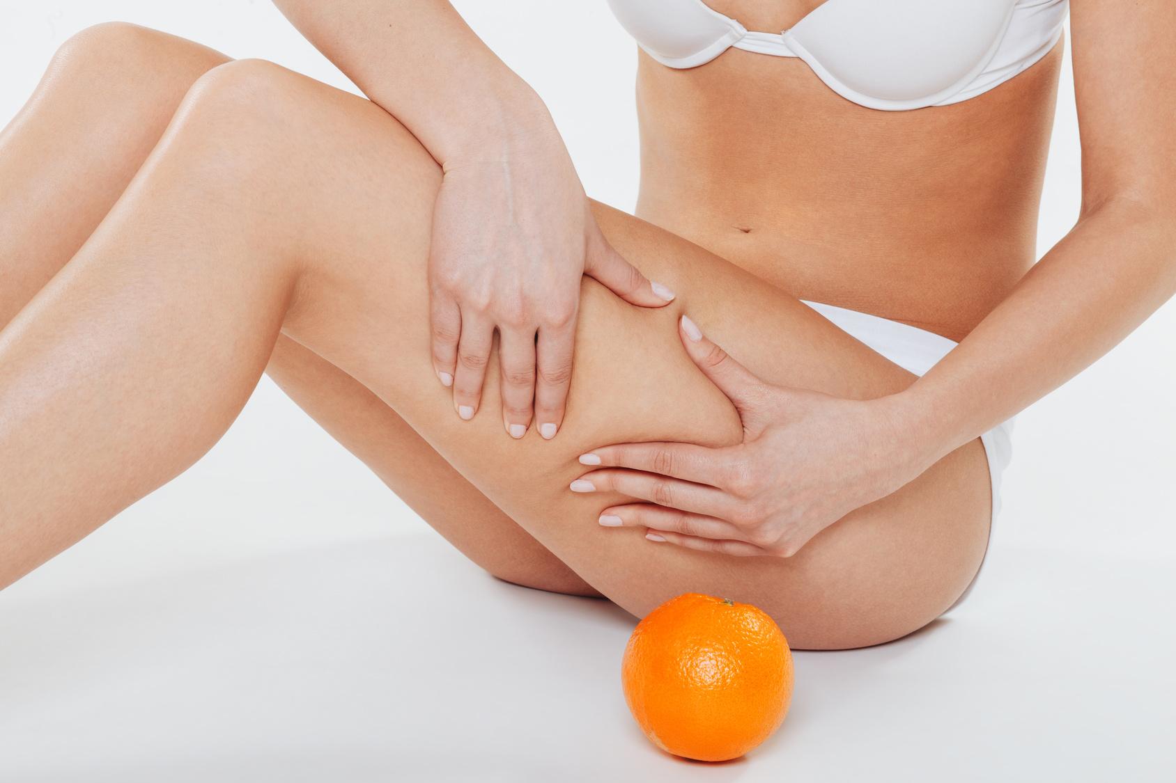 """Cała prawda o Cellulitis. Co może nasilić znienawidzony przez kobiety """"efekt skórki pomarańczy""""?"""
