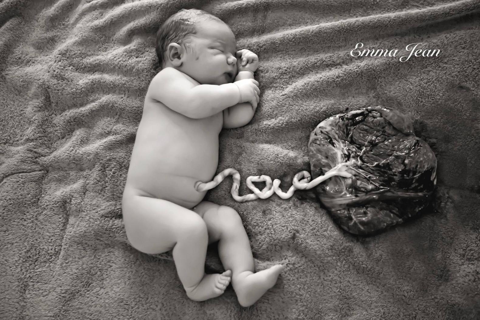 Wyjątkowe zdjęcie noworodka z łożyskiem. Jaka jest jego historia i głębsze przesłanie ?