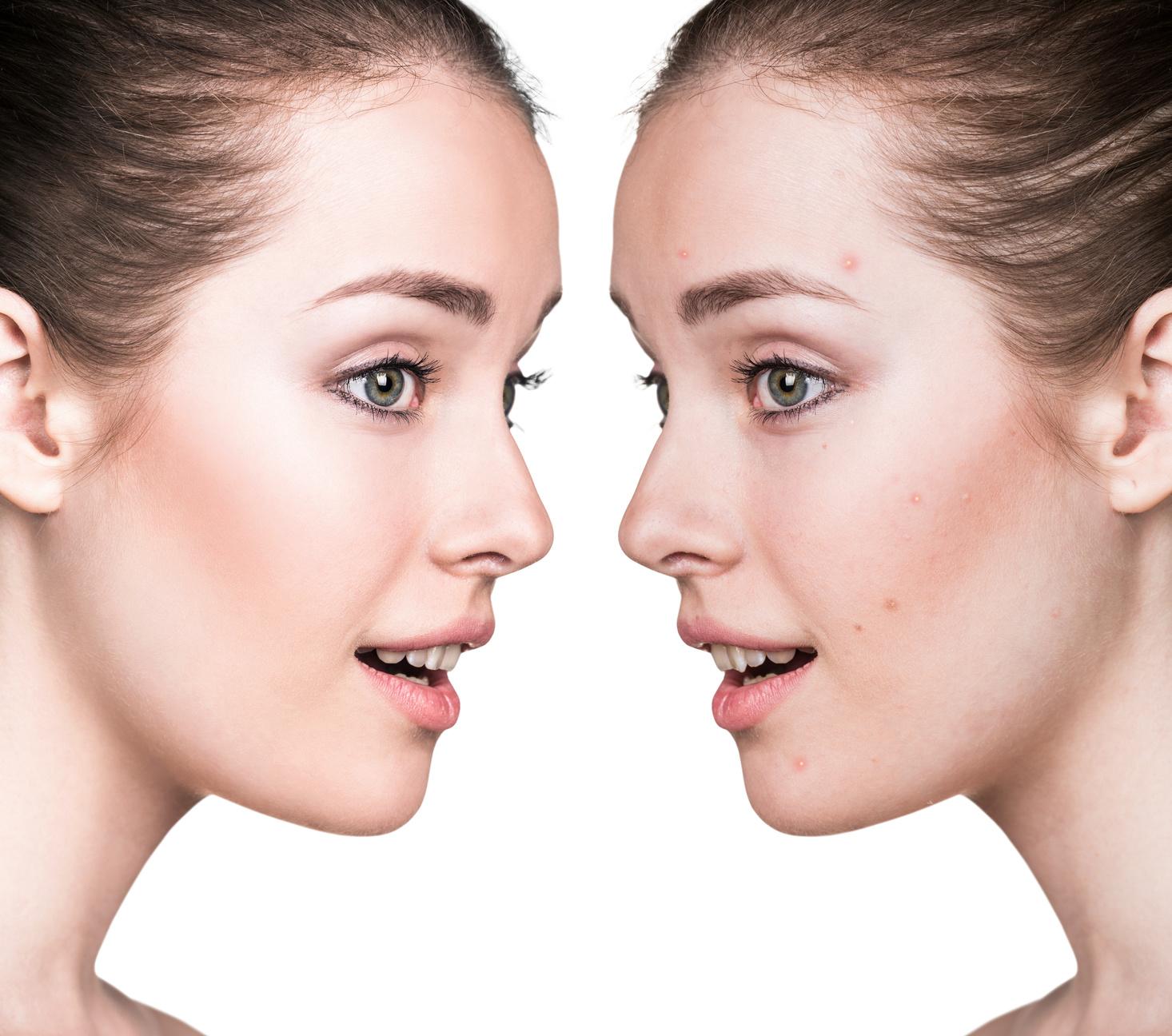 8 nawyków kobiet z idealną  cerą: zdradzamy  jak dbają o swoją skórę każdego dnia