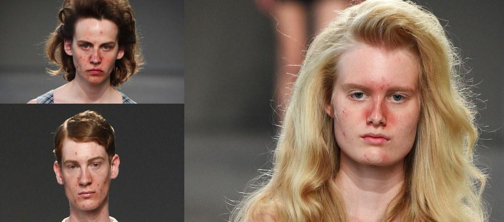 Nowy trend na Fashion Week: pryszcze i niedoskonałości na wybiegu. Głębszy przekaz, czy przesada?