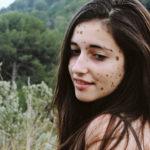 Ta nastolatka była brutalnie prześladowana ze względu na chorobę skóry. Dziś zaakceptowała swoje znamiona i chce pomagać innym