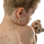 Odra rośnie w siłę: Antyszczepionkowcy winni coraz to większej liczby zakażeń